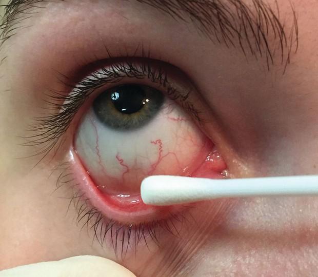 Chàng trai 20 tuổi mắc bệnh lây truyền qua đường tình dục nhưng triệu chứng lại xuất hiện ở... mắt - Ảnh 1.