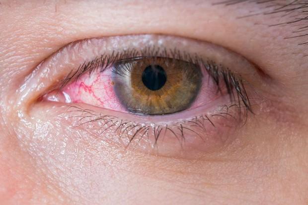 Chàng trai 20 tuổi mắc bệnh lây truyền qua đường tình dục nhưng triệu chứng lại xuất hiện ở... mắt - Ảnh 3.