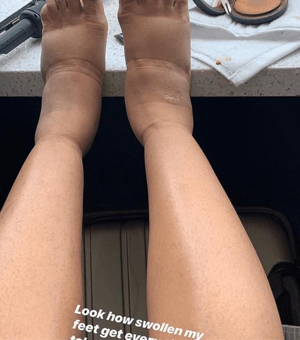 Không dám nhìn hình ảnh Cardi B quyết hở bạo, lồ lộ đôi chân biến dạng nặng nề hậu dao kéo tại VMAs - Ảnh 3.