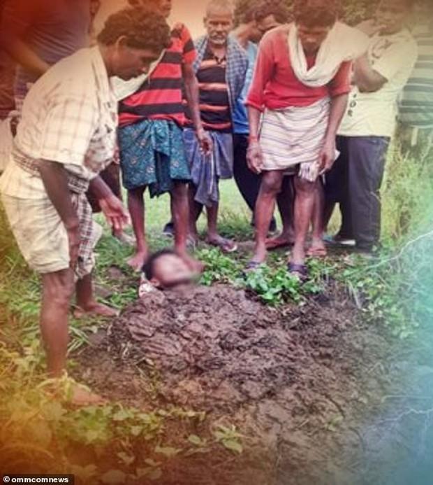 Sống sót thần kỳ sau khi bị sét đánh trúng, người đàn ông lại qua đời oan uổng vì kiểu chữa bệnh lạ lùng của dân làng - Ảnh 1.