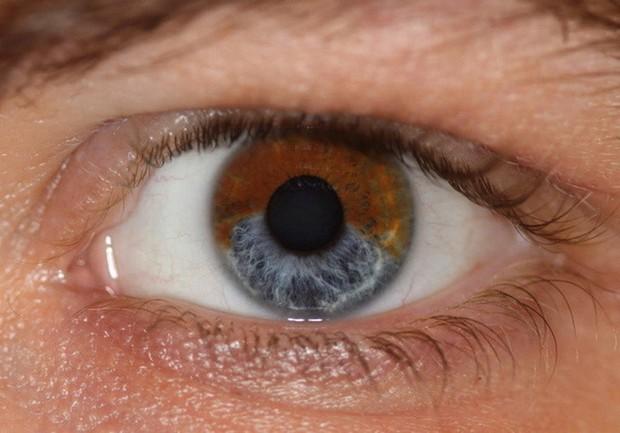 Nhiễm độc thủy ngân: những triệu chứng bạn có thể nhận biết và cách xử lý ban đầu - Ảnh 5.