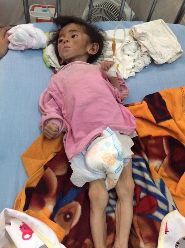 Hình ảnh em bé Lào Cai bụ bẫm đáng yêu trong bộ váy tím khi được bố nuôi bế khiến nhiều người chú ý - Ảnh 1.