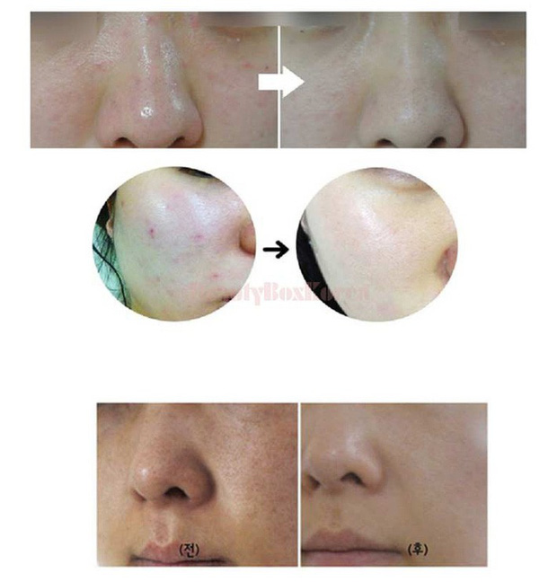 3 lọ serum khủng từ kích thước đến khả năng hồi xuân nhan sắc, cung cấp dịch vụ skincare hoàn hảo - Ảnh 4.
