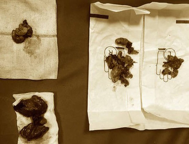 Bác sĩ ngỡ ngàng vì thiếu nữ 15 tuổi ung thư tuyến giáp di căn nhiều nơi - Ảnh 1.