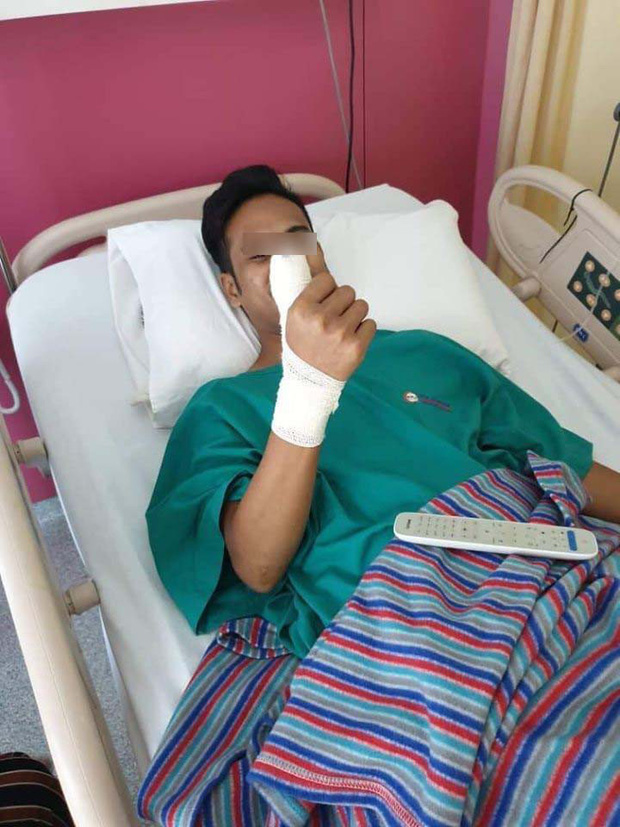 Chỉ vì dùng điện thoại nứt miếng dán màn hình, chàng trai trẻ bị sưng và nhiễm trùng đến nỗi phải phẫu thuật ngón tay - Ảnh 1.