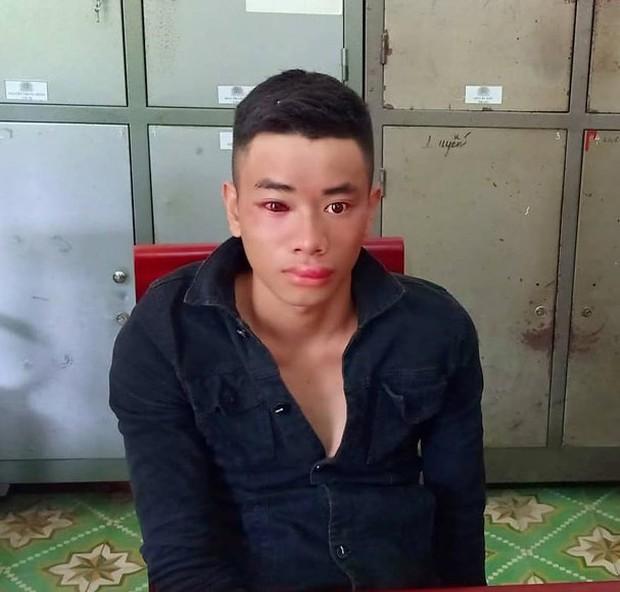Thanh niên nghiện ma túy dùng kim tiêm đâm chiến sĩ công an khi bị vây bắt - Ảnh 1.