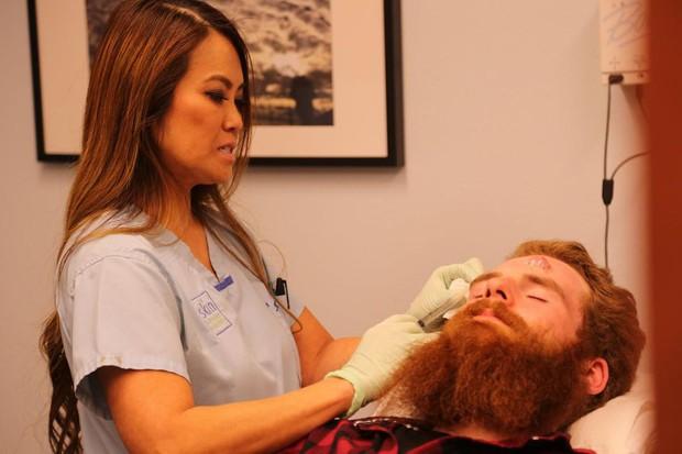 Xem Dr  Pimple Popper lấy cồi mụn đầu đen từ người đàn ông