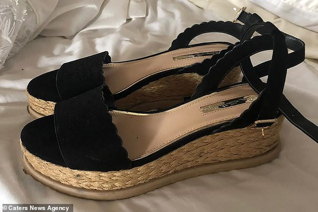 Mua giày ở cửa hàng đồ cũ, cô nàng người mẫu Anh không ngờ chân mình bị nhiễm trùng huyết nghiêm trọng - Ảnh 2.