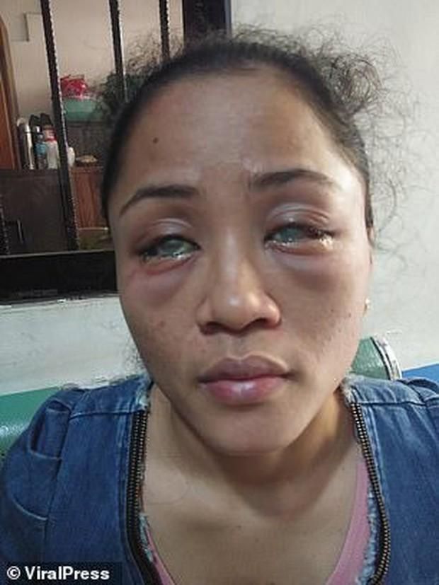 Phát hiện bạn trai có người tình đồng tính bên ngoài, cô gái chưa hết đau lòng còn bị đánh ghen ngược, đối mặt nguy cơ mù cả hai mắt - Ảnh 1.