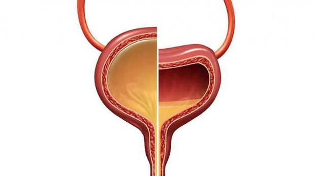 Không chỉ gây ra sỏi thận, nhịn tiểu quá lâu còn có thể gây vỡ bàng quang, nhiễm trùng đường tiết niệu - Ảnh 2.