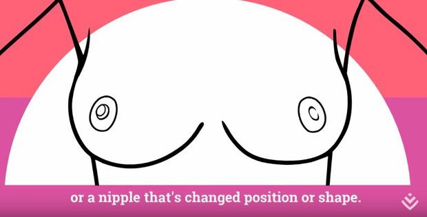 Cách tự kiểm tra ung thư vú tại nhà: tưởng khó nhưng lại rất dễ để bạn tự thực hiện mỗi tháng - Ảnh 12.
