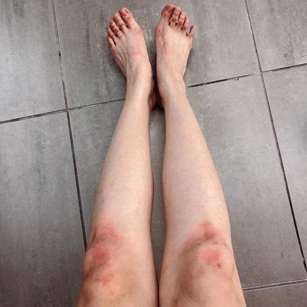 Khoe chân sưng tấy vì tập luyện cho come back, Sunmi đã không được netizen thương mà còn bị mỉa mai đủ điều - Ảnh 1.