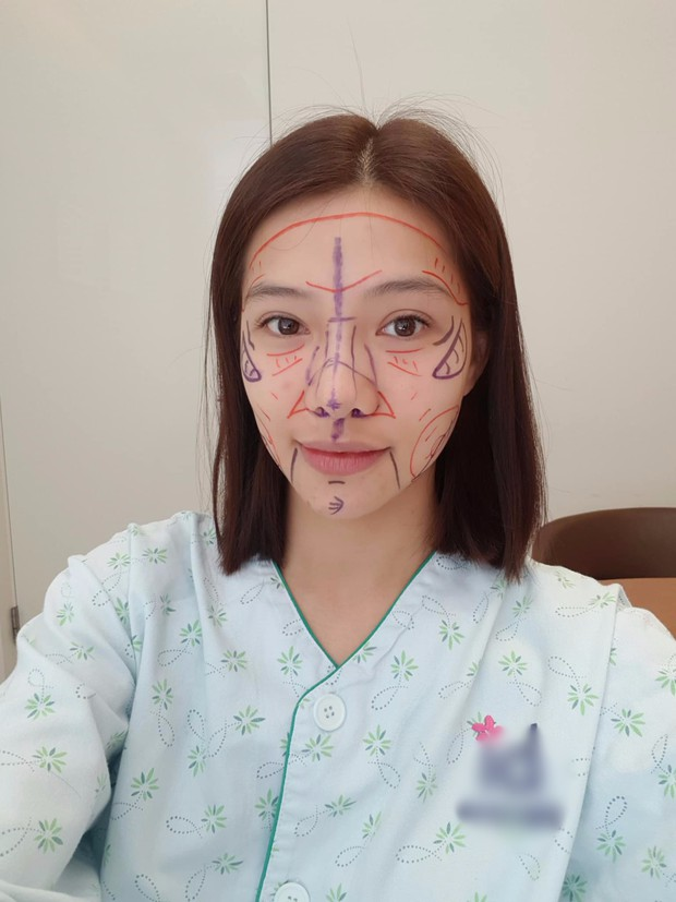 """Lưu Đê Ly khoe trải qua 6 ca phẫu thuật ở Hàn để """"đập mặt làm lại"""", đẹp hay không chưa bàn chỉ biết là quá dũng cảm rồi! - Ảnh 2."""
