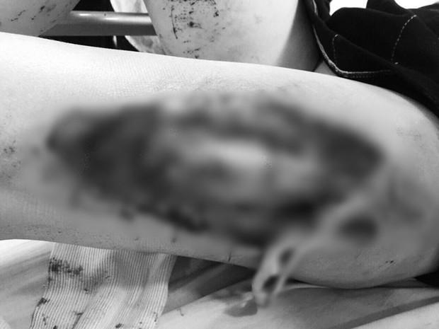 Bác sĩ Bệnh viện Xanh Pôn thông tin vụ nữ CĐV bị pháo bắn trúng: Vết thương do công phá từ sức nổ, không phải do bỏng - Ảnh 3.