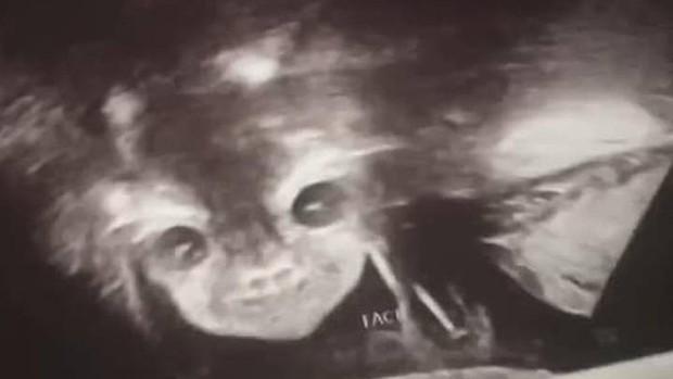 Đi siêu âm thai nhi 24 tuần tuổi, bà mẹ hết hồn khi thấy hình ảnh bé con như đang nhìn chằm chằm mình - Ảnh 1.