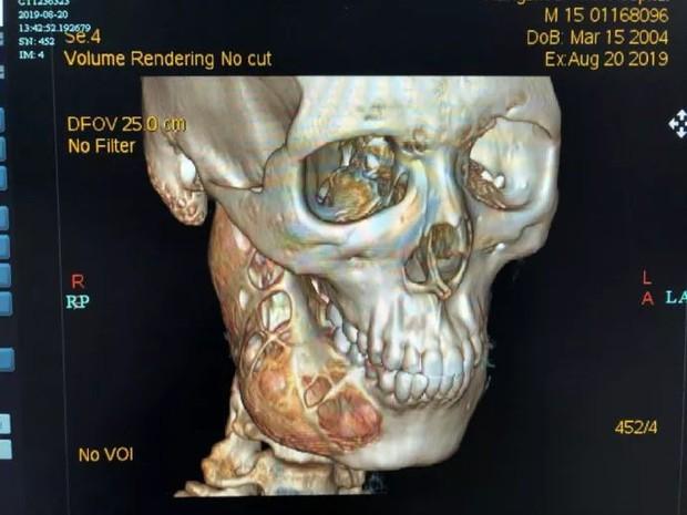 Chủ quan trong việc chăm sóc răng miệng, cậu bé 15 tuổi đi khám mới biết xương hàm phải bị ăn mòn một nửa - Ảnh 1.