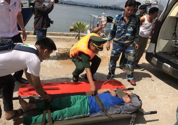 Đà Nẵng: 1 ngư dân tử vong, 3 người nhập viện nghi ngộ độc do ăn cá nóc - Ảnh 1.