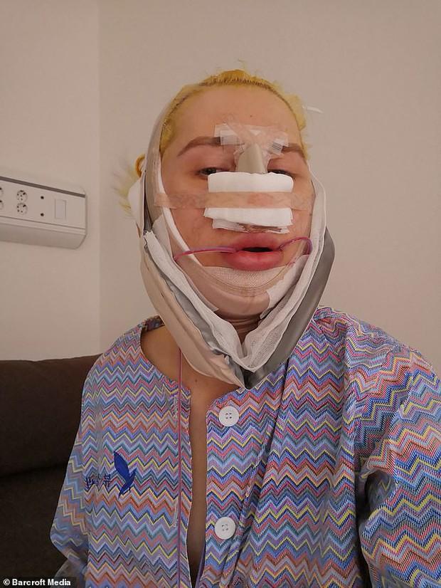 Hâm mộ Jimin (BTS), chàng trai chi gần 4 tỷ đồng để phẫu thuật gương mặt giống thần tượng - Ảnh 4.