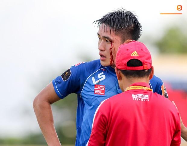 Máu đổ ròng ròng trên mặt trung vệ U22 Việt Nam trong trận đấu ở vòng 23 V.League 2019 - Ảnh 1.