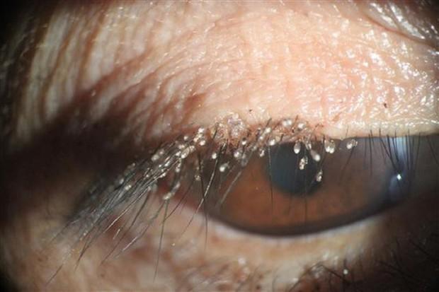 Quên làm việc này trước khi đi ngủ, bọ ve làm tổ dày trên hàng lông mi người phụ nữ ở Trung Quốc - Ảnh 3.