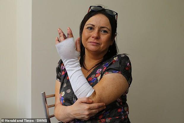 Bị mèo hoang cào: người phụ nữ nhiễm 2 loại vi khuẩn ăn thịt người phải cắt bỏ một ngón tay - Ảnh 1.
