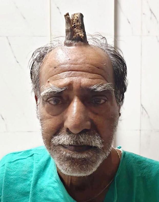 Cứ nghĩ khối u trên đầu vô hại, người đàn ông chẳng ngờ sau 5 năm nó hóa sừng quỷ dài 10cm làm ai nhìn vào cũng thấy sợ - Ảnh 1.