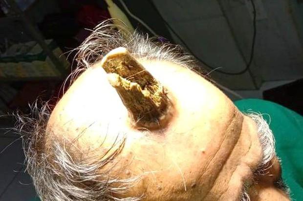 Cứ nghĩ khối u trên đầu vô hại, người đàn ông chẳng ngờ sau 5 năm nó hóa sừng quỷ dài 10cm làm ai nhìn vào cũng thấy sợ - Ảnh 2.