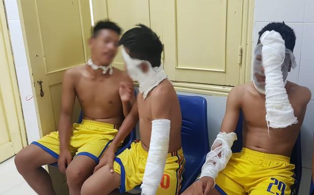 Chùm bóng bay phát nổ, 3 cầu thủ U14 Sông Lam Nghệ An nhập viện - Ảnh 1.