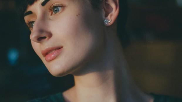 Có tới 5 loại nếp nhăn hình thành trên da nhưng không phải ai cũng biết cách khắc phục hiệu quả - Ảnh 2.
