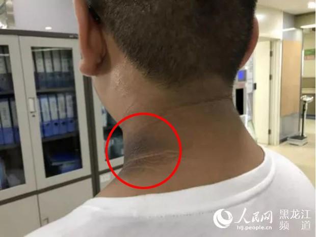 Cậu bé 8 tuổi có vệt đen bất thường trên cổ, đi khám mới biết là do một căn bệnh rất đỗi quen thuộc - Ảnh 2.
