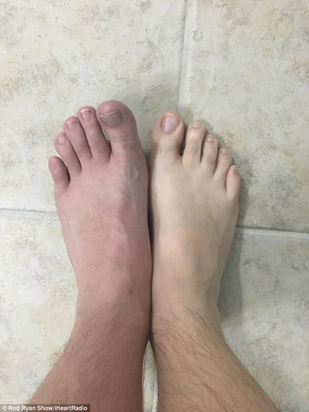 Cảnh báo: Đi chân trần trong buồng tắm chung ở phòng gym khiến người đàn ông bị vi khuẩn ăn thịt người tấn công - Ảnh 3.