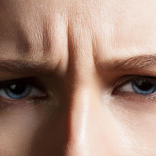 Có tới 5 loại nếp nhăn hình thành trên da nhưng không phải ai cũng biết cách khắc phục hiệu quả - Ảnh 5.