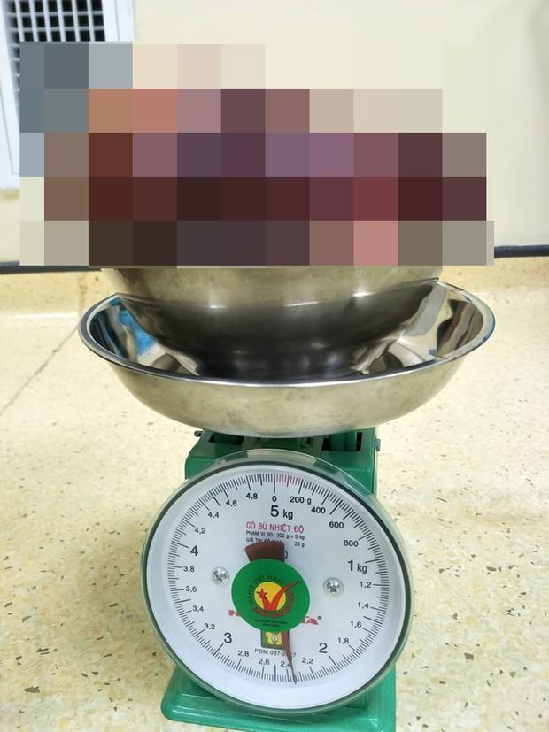 Kinh hoàng bệnh nhân 24 tuổi có khối u 2,3kg: Bác sĩ cảnh báo những triệu chứng cần đi kiểm tra ngay - Ảnh 1.