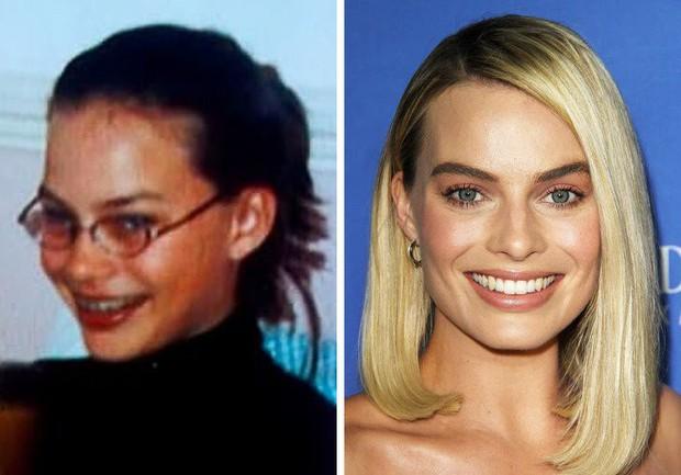 Loạt mỹ nhân Hollywood lột xác sau tuổi dậy thì: Anne Hathaway thay đổi ngoạn mục cũng không bằng tình cũ Johnny Depp - Ảnh 1.