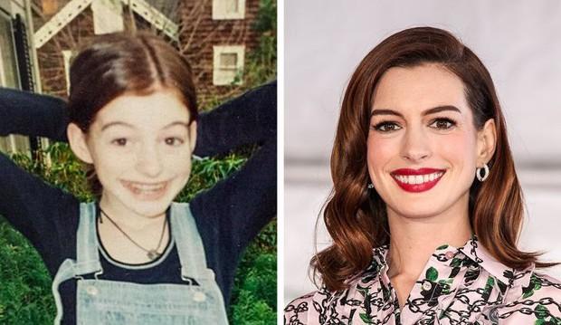 Loạt mỹ nhân Hollywood lột xác sau tuổi dậy thì: Anne Hathaway thay đổi ngoạn mục cũng không bằng tình cũ Johnny Depp - Ảnh 4.