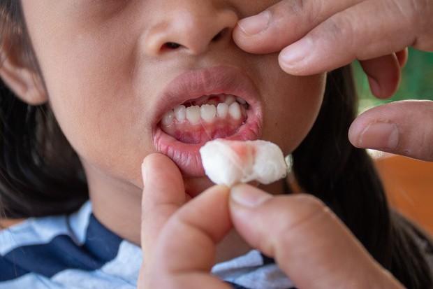 Đột nhiên chảy máu nướu răng hãy làm ngay những việc này để tránh gặp nguy - Ảnh 1.