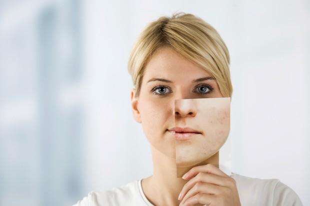 5 dấu hiệu cho biết cơ thể các bạn nữ đang thiếu hụt nội tiết tố giúp duy trì sắc đẹp - Ảnh 1.