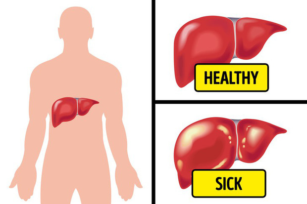 Tình trạng chướng bụng, đầy hơi có thể ngầm cảnh báo 6 vấn đề sức khỏe mà bạn không ngờ đến - Ảnh 2.