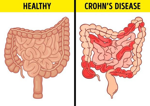 Tình trạng chướng bụng, đầy hơi có thể ngầm cảnh báo 6 vấn đề sức khỏe mà bạn không ngờ đến - Ảnh 3.