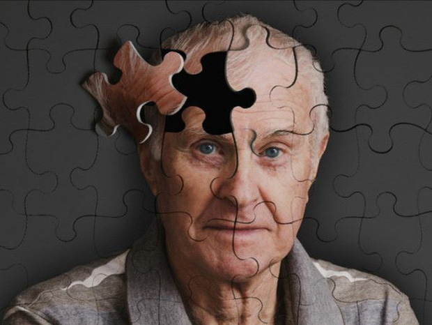 Công bố mới: Đã có vắc-xin đặc trị chứng mất trí Alzheimer - Ảnh 1.