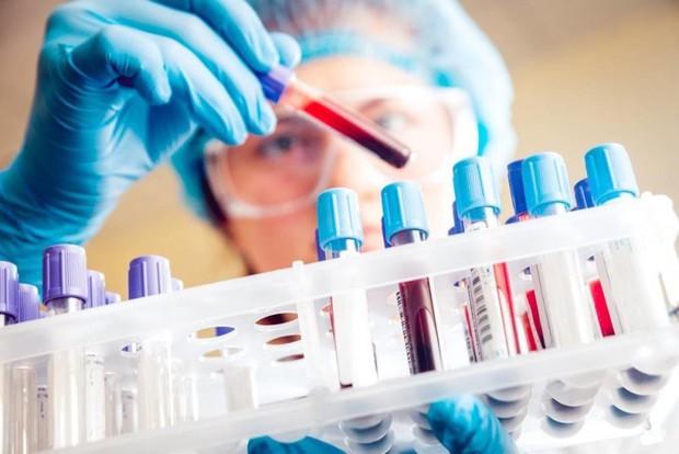 Startup Singapore muốn xóa sổ ung thư giai đoạn cuối vào năm 2048, bằng xét nghiệm máu phát hiện sớm 8 loại ung thư - Ảnh 3.