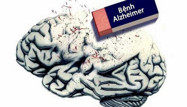 Công bố mới: Đã có vắc-xin đặc trị chứng mất trí Alzheimer - Ảnh 4.