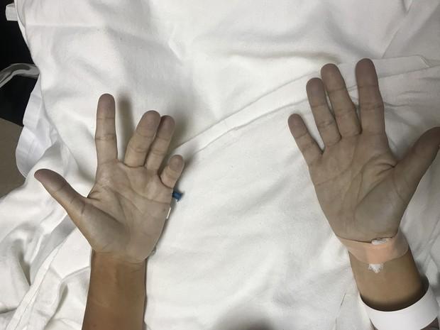 Người phụ nữ suýt mất mạng vì da đột nhiên chuyển thành màu xanh: Tất cả bắt đầu sau một trận đau răng - Ảnh 1.