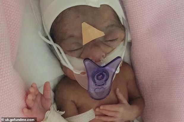 Đột ngột chuyển dạ sinh non trong lúc đi du lịch tại Dubai, cặp vợ chồng buộc phải trả phí gần 3 tỷ đồng mới có thể mang con về quê nhà - Ảnh 2.