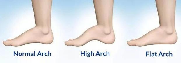 Không phải chiều cao hay kiểu dáng gót giày, nàng công sở nên chọn giày cao gót dựa vào 1 chi tiết quan trọng - Ảnh 5.