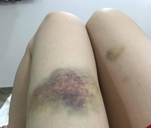 Nhật Kim Anh đăng ảnh hậu trường bị chấn thương bầm dập phải nhập viện: Thị Bình ám từ phim ra đời thực? - Ảnh 15.