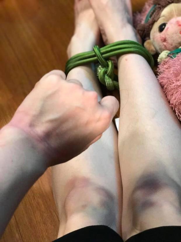 Nhật Kim Anh đăng ảnh hậu trường bị chấn thương bầm dập phải nhập viện: Thị Bình ám từ phim ra đời thực? - Ảnh 13.