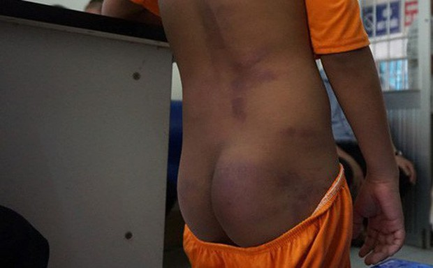 Vụ học sinh tiểu học nghi bị người thân bạo hành ở Cà Mau: Bố mẹ 4 em đang làm thủ tục nhận lại con - Ảnh 1.