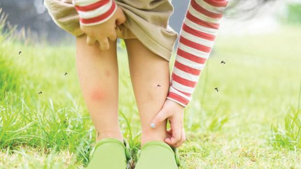 Những điều có thể bạn chưa biết về sốt xuất huyết Dengue - Ảnh 2.