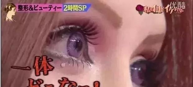 Thảm hoạ thẩm mỹ Nhật Bản: Bị bố ruột ruồng bỏ vì quá xấu, hàng trăm ca dao kéo bất chấp sinh mạng và tâm sự buồn phía sau - Ảnh 4.